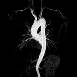 aorta toracica