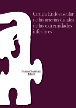 cirugia_endovascular_arterias_distales