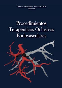 procedimientos-terapeuticos-vasculares