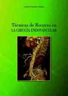 tecnicas-recurso-endovascular