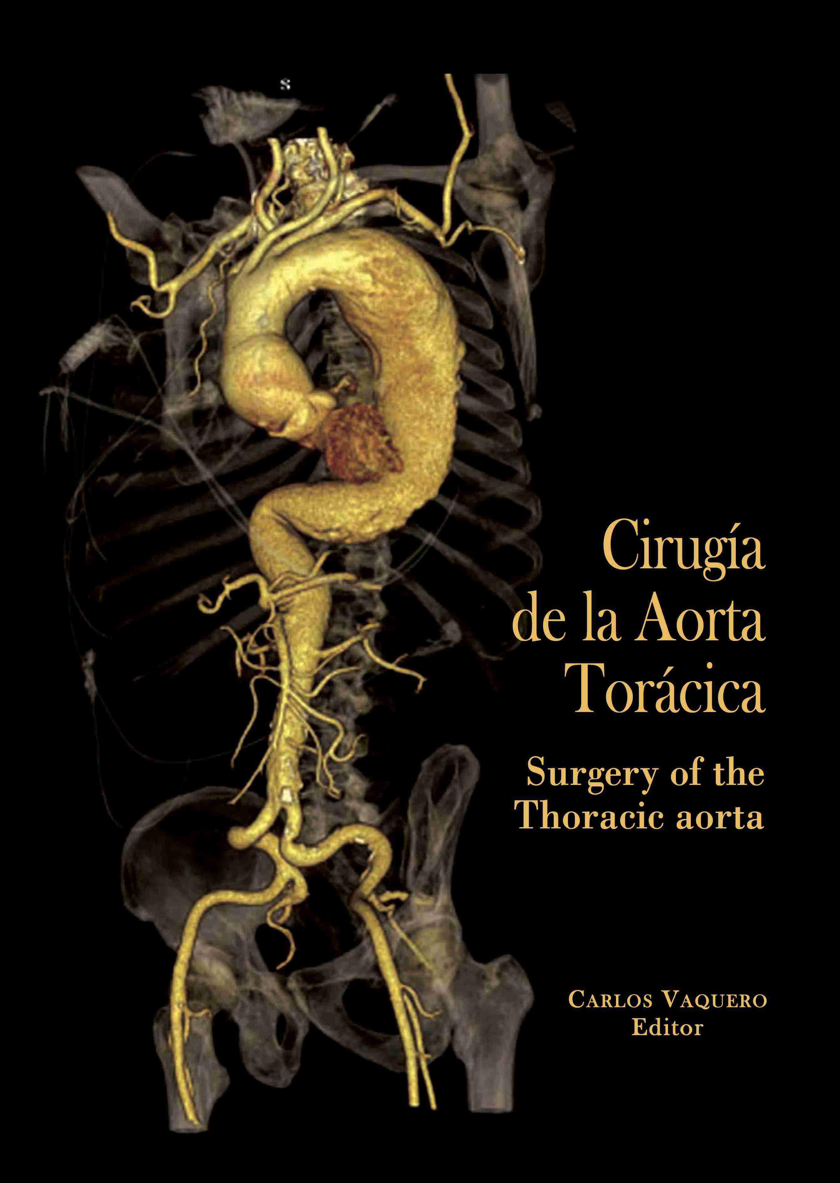 cirugia-de-la-aorta-toracica
