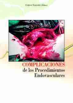 complicaciones-procedimientosendovascular