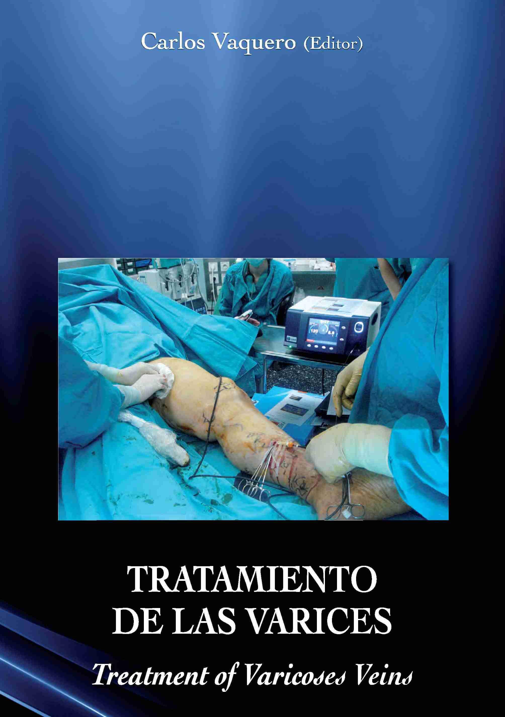 tratamiento-de-las-varices