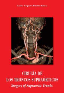 cirugia-troncos-supraorticos