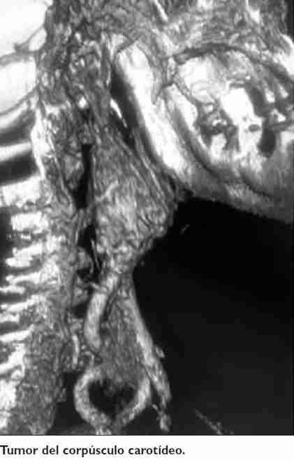 tumor-corpusculo-carotireo